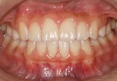 審美歯科治療 中葛西歯科・矯正歯科